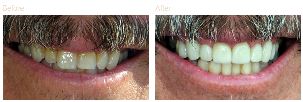 smile makeover before and after image