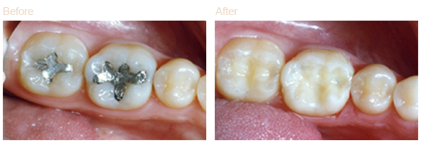 tooth colored fillings before and after image
